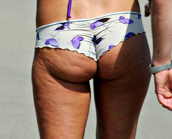 celebrity-beach-bum-cellulite
